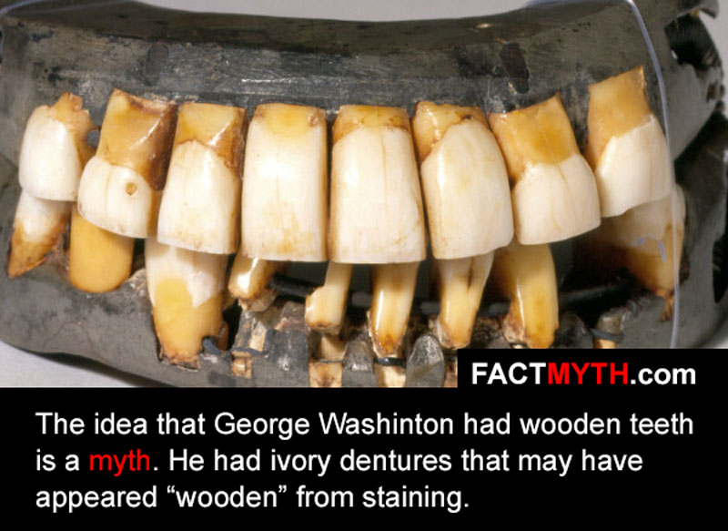 George Washington Had Wooden Teeth Fact Or Myth