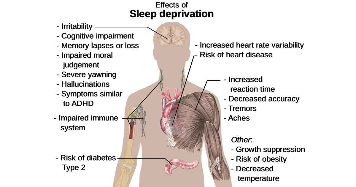 Sleep deprivation has a negative impact on health.